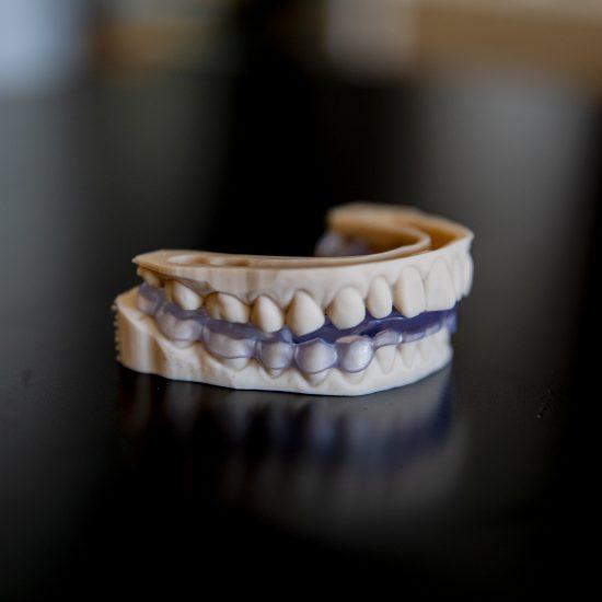 Dental splint on the model